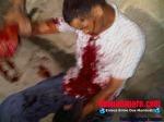 Botellon al ser herido en el Paque Duarte