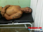 El cuerpo sin vida de Botellon en el Hospital